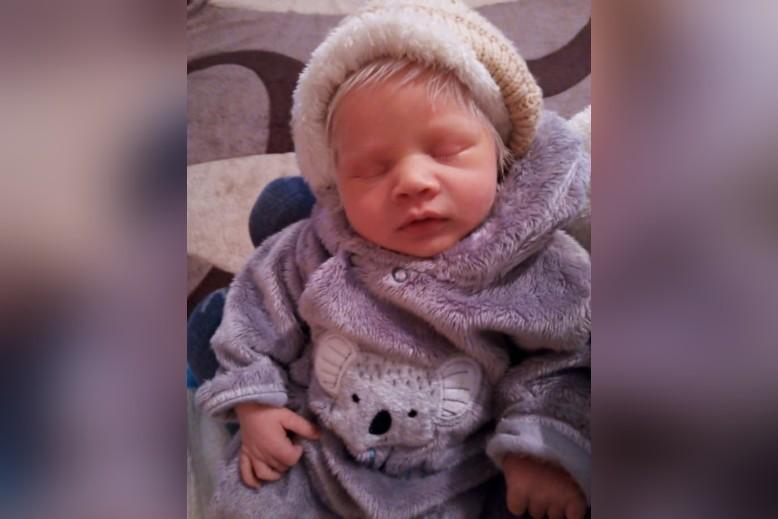Caso raro: mãe dá à luz bebê albino e família é pega de surpresa na região noroeste